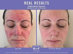 """Before using Rodan + Fields, I had to wear heavy layers of makeup to hide blemishes and redness and would never think of leaving my home without it. After just one week, I noticed a big improvement in my skin. After just 6 weeks, my skin is calm and almost completely clear. These products have been completely #lifechanging."" –R + F PC, Meghan Roberts. ""Double tap"" if the #UNBLEMISHRegimen has helped you ‪#RFBreakTheCycle."