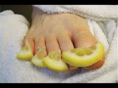 Watch This Video Mind Blowing Home Remedies for Toenail Fungus that Really Work Ideas. Astonishing Home Remedies for Toenail Fungus that Really Work Ideas. Toenail Fungus Remedies, Toenail Fungus Treatment, Toe Fungus Cure, Cure For Toenail Fungus, Fungus Toenails, Fingernail Fungus, Toenail Fungus Vinegar, Pedicure At Home, Health Fitness