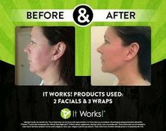 Healthy Future with It Works!: Before and After Pics2 facials and 3 wraps http://healthyfuture.myitworks.com #Itworks