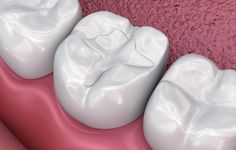 Repair your damaged tooth with our tooth colored fillings treatment in Pune. This treatment revives the strength, repairs fractured teeth, closes gaps between the teeth, etc. Dental Fillings, Restorative Dentistry, Affordable Dental, Dental Bridge, Dental Procedures, Dental Crowns, Cosmetic Dentistry, Dental Implants, Teeth