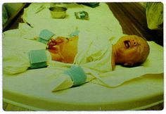 {What the Bible Really Says About Routine Infant Circumcision}