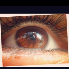 This is a picture of my eye that I took with my iPhone4S