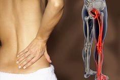 Managing Sciatica Pain Making Use Of Pressure Points