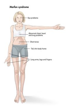 the clinical description of the marfan syndrome Marfan syndrome (mfs) is a spectrum disorder caused by a  et al, the physical  examination features with the highest diagnostic yield were as.