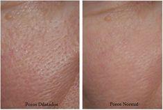 Forstørrede porer er meget almindelige i dag.Mange bruger makeup, for at prøve at dække dem. Hvorfor ikke lære hvad der forårsager porer i at udvide sig?