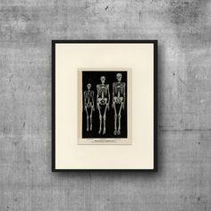 Vintage Human Skeleton Art Print C. 1900 Antique Lithograph - Human Anatomy…