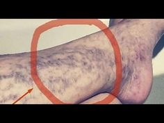 Natural Remedies For Varicose Veins Everybody Has This Miracle Cure for Varicose Veins At Home, But Many People Don't Know About It Varicose Vein Remedy, Varicose Veins, Health Remedies, Home Remedies, Natural Remedies, Allergy Remedies, Health Advice, Health Care, Natural Treatments