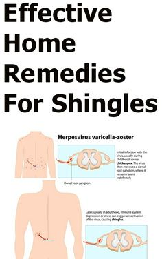 17 Effective Home Remedies For Shingles - I hope I never have to use this knowledge!