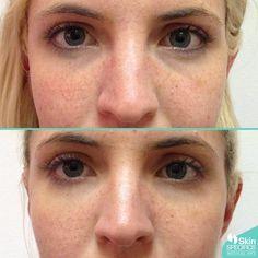 Dark Circles Around Eyes Treatment Los Angeles Under Eye Fillers, Tear Trough, Glossier Lip Gloss, Oil Free Makeup, Spa, Facial, Medical, Lots Of Makeup, Lips