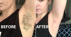 arm pit detox
