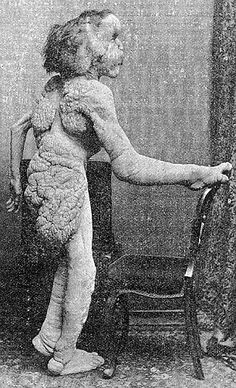 12 Heartbreaking Facts About Joseph Merrick, The Elephant Man John Merrick, Joseph Merrick, Elephant Man, Vintage Oddities, Sideshow Freaks, Human Oddities, Cottage Art, Historical Pictures, Victorian Era