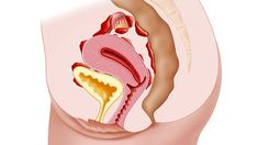The bowel is the second most common place for endometriosis lesions to grow. Bowel endometriosis is often misdiagnosed as irritable bowel syndrome (IBS). Endometriosis can occur inside, on, or around the intestines. How To Treat Endometriosis, Endometriosis Diagnosis, Endometriosis Awareness, Sigmoid Colon, Endo Diet, Natural Fertility, Exercises