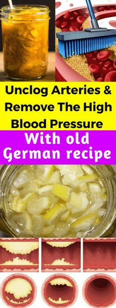 High Blood Pressure Remedies Natural Cures for Arthritis Hands - Unclog Arteries And Remove The High Blood Pressure With Just 4 Tablespoons Arthritis Remedies Hands Natural Cures Dr. Oz, Arthritis Hands, Arthritis Remedies, Diabetes Remedies, Natural Health Remedies, Natural Cures, Natural Healing, Old German Recipe, Natural Cure For Arthritis