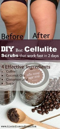 DIY Best Cellulite Scrubs That Work Fast In 2 Days! With most Powerful 7 Homemade Remedies to Remove Cellulite Naturally Effective Ingredients • Coffee • Coconut Oils • Cinnamon ,and • Sugar #SkinCare