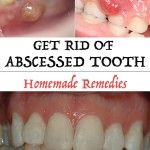 Get Rid of Abscessed Tooth