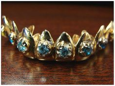 Are you aware of the oral health hazards of dental grillz?  #DeltaDental