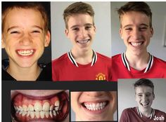 "Elisabeth Norris: ""This afternoon after a long 29 months (04/14- 09/16) Josh's journey with the braces has ended. (Just the retainer to go). Thank you Daz Deepan Karthik for your amazing work. The smile on Josh's face has made it all worthwhile......"" We love seeing all of Dr. Dee's patient results! It is so touching to know how much difference we can make :) #happywednesdays #voguedentalstudios #cosmeticdentistry #melbourne #happiness #transformation #journey #love"
