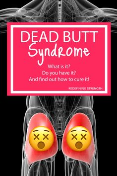Dead butt syndrome or underactive glutes can hip, knee and lower back aches and pains. It can also hinder your running and lifting. Here are 3 moves to unlock tight hips and activate your glutes. Hip Strengthening Exercises, Hip Flexor Exercises, Back Exercises, Yoga Exercises, Stability Exercises, Core Stability, Hip Flexor Pain, Tight Hip Flexors, Lower Back Ache