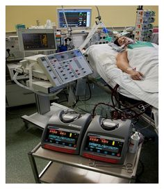 Patient with Centrimag BiVAD (bi-ventricular assist device) support. We see these in my ICU in the sickest of sick patients with massive cardiogenic shock. These guys always have a tree of life at the bedside. The ICU nurse must inspect the pumps and cannulae every hour for development of clots and record flows through the heart. Most important, keep the LVAD flow higher than the RVAD flow at all times and know where your clamps/back-up console are if the pump stops! #ICU #nursing