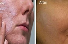 Il suffit d'un seul Ingrédients pour se débarrasser des pores Ouverts Et obstrués!
