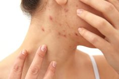 How To Use Salt To Kill Scabies - Scabies Remedy Home Remedies For Scabies, Acne Remedies, Natural Remedies, How To Remove Pimples, How To Get Rid Of Acne, Acne Skin, Acne Prone Skin, Acne Treatment, Hair