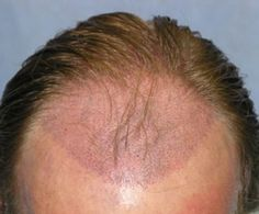 Things You Want To Know About Hair Transplantation