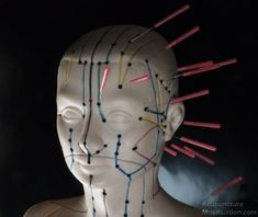 Don't Get Into Acupuncture Without Reading This First! * Find out more at the image link.