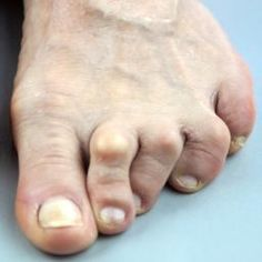 Metatarsalgia refers to pain and inflammation in the metatarsal, or ball of the foot. Find out what causes it and how to treat or prevent it.