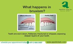 Tackle Bruxism and fractured, flattened teeth by getting proper dental care that will stop the exposure of your inner portions of teeth! Visit- www.appoloniadc.com