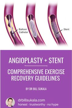 Angioplasty and stent recovery exercise / fitness guidelines. Step-by-step guide to selecting frequency, intensity, time (duration), and type of exercise after your angioplasty procedure. Heart Catheterization, Cardiac Catheterization, Heart Stent, Heart Attack Recovery, Medical Photos, Cardiac Nursing, Heart Muscle, Healthy Mind And Body