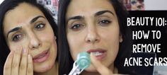 Tutorial   Beauty 101 How to Get Rid of Acne Scars (THIS WORKS)!