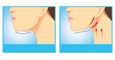 The Best Exercises For Getting Rid Of That Unwanted Double Chin & Neck Fat - Natural Health Products Healthy Man, How To Stay Healthy, How To Get Rid, How To Remove, Reduce Face Fat, Reduce Double Chin, Double Chin Exercises, Face Exercises, Different Exercises