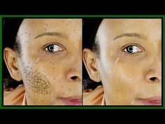 THIS 3 INGREDIENTS MIXTURE WILL GET RID OF MILD TO SEVERE HYPERPIGMENTATION | Khichi Beauty - YouTube