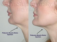 Botox Injections into the platysma muscle to eliminate unwanted lines and banding in the neck. Surgery Humor, Neck Surgery, Neck Lift, Celebrity Plastic Surgery, Botox Injections, Facelift Surgery, Band, Makeup, Beauty