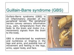 Image result for guillaume barre syndrome infographic