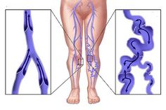 Varicose veins don't always need treatment. If your varicose veins aren't causing you discomfort, you may not need to have treatment. Varicose Vein Remedy, Varicose Veins Treatment, Vein Removal, Hair Remedies, Acne Remedies, Health Remedies, Natural Home Remedies, Natural Treatments, Rid