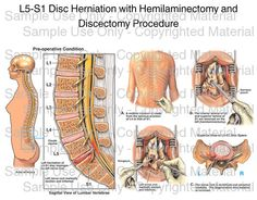 loading l5 s1 disc herniation with hemilaminectomy and discectomy procedure please