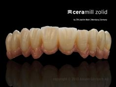 Beautiful case out of Ceramill Zolid - monolithic zirconia - done by MDT Joachim Maier