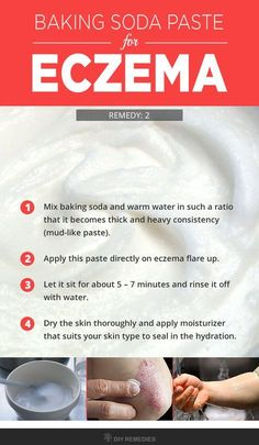 How to Soothe Eczema with Baking Soda  Method – 2: (Baking Soda Paste for Eczema)  Even the topical application of baking soda as paste form will help to clear eczema. This process is used to treat eczema itch, redness, irritation and eczema scars on the skin.