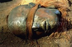 "Mummified head of Windeby Girl, a ""bog body"" dated to the Roman Iron Age. Tollund Man, Bog Body, Early Humans, Iron Age, Braided Leather, Prehistoric, Ancient History, Archaeology"