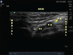 ultrasound-guided femoral nerve block - youtube | ultrasound, Muscles