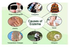 Eczema (Atopic Dermatitis) Pictures Slideshow: Causes, Symptoms and Treatment on MedicineNet