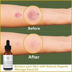 Restore your skin with natural organic Moringa cols press seed oil
