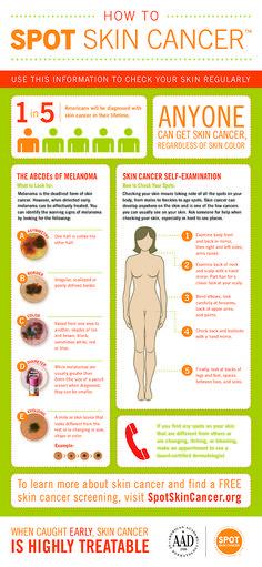 Infographic: How to SPOT Skin Cancer #SPOTskincancer #melanoma #detection