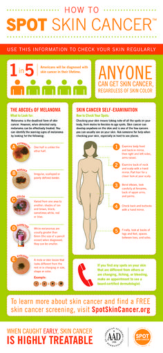 Infographic: How to SPOT Skin Cancer #SPOTskincancer #melanoma #detection