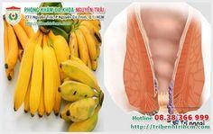 Chữa bệnh trĩ ở đâu TPHCM: Thực hư việc chữa bệnh trĩ bằng chuối sứ