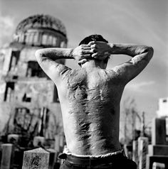 by Werner Bischof. A victim of the Hiroshima atomic explosion. Hiroshima, 1951.