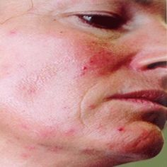 Causes of Rosacea - Symptoms of Rosacea - Treatment for Rosacea