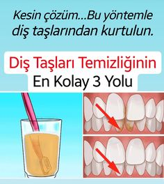 Diş Taşları Temizliğinin En Kolay 3 Yolu Diet And Nutrition, Medical, Weight Loss, Healthy, Genetics, Medicine, Losing Weight, Health, Med School