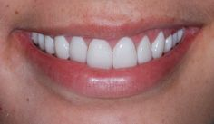 Gum Lift:          A gum lift is a procedure that reshapes the gum tissue to create the appearance of larger/long
